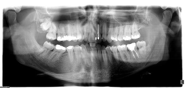 Esthetic Dental Center Josiip Novosel - zubi tajkuna pod rendgenom. Foto: Flash.hr